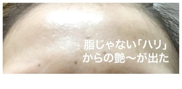 米肌の澄肌美白お試しセットを使ったらおでこがツヤでた写真
